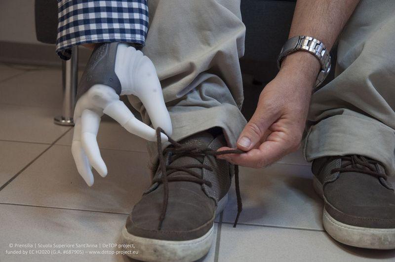 Протез. Бионическая рука