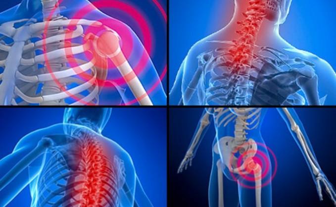 Миофасциальные боли и триггерные точки